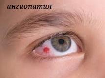 angiopatiya