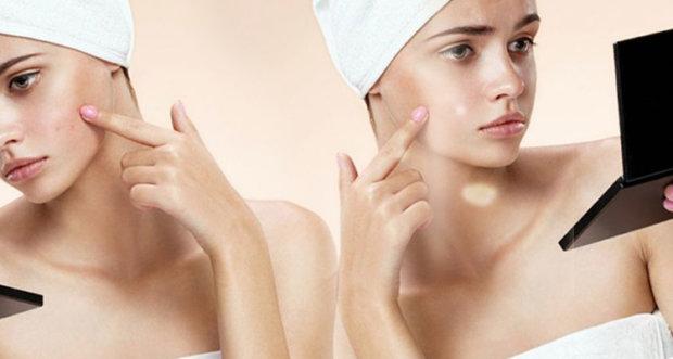 Как желатином чистить поры на лице